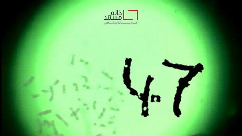 روایت یک کروموزوم اضافی در مستند «۴۷» اثری از جابر مطهری زاده